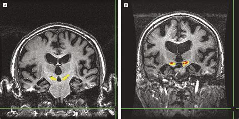 Iron Accumulation in the Substantia Nigra of Patients With